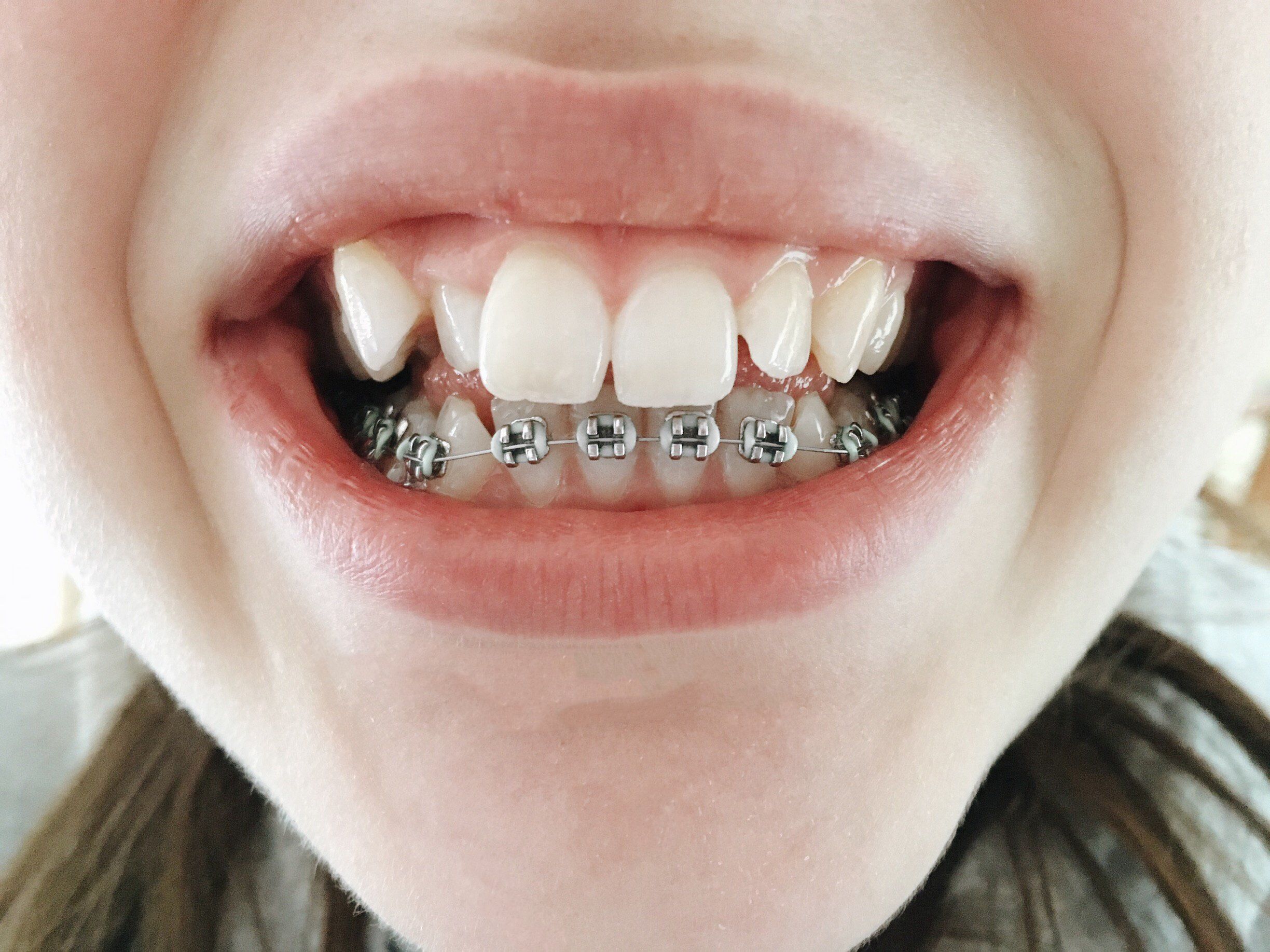 Experience Getting Braces